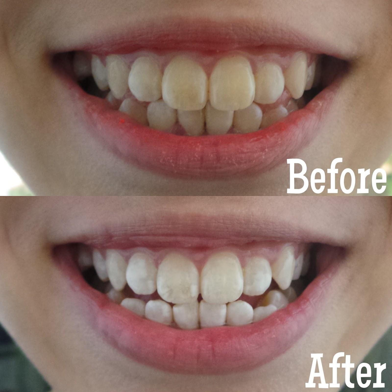 Rubbercheeksxo Mirage Aesthetic Led Teeth Whitening
