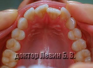 Планирование ортодонтического лечения