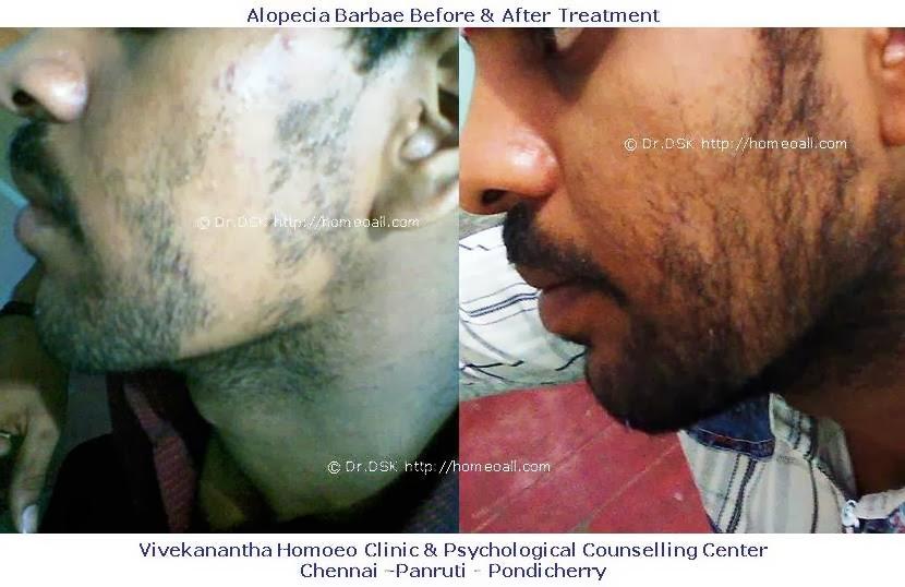Alopecia Barbae Treatment Natural