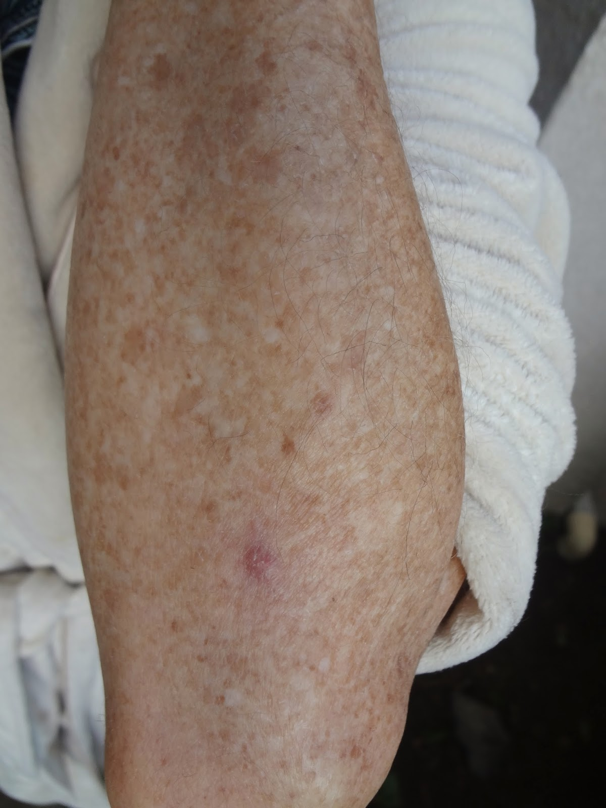 Healed skin cancer