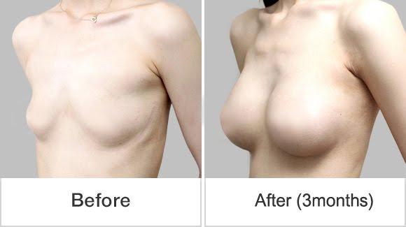 짱이뻐! - Finally Have Breast Through Teardrop Implant Wonjin Plastic Surgery Korea