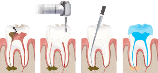 Root Canal in San Carlos CA