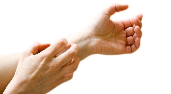 Tangan gatal alergi
