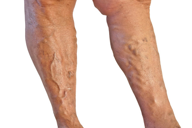 SPIRAL OR BROKEN OR VARICOSE VEINS