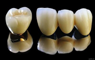 Răng sứ loại nào tốt nhất - Răng sứ kim loại