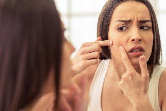Granitos de acné: hábitos para disminuir su aparición