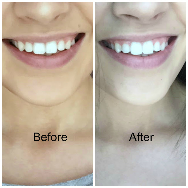 Instant Whites 7 Day Teeth Whitening Kit before and after