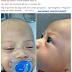 Bayi Lebam & Bengkak Muka Selepas Diambil Dari Rumah Pengasuh