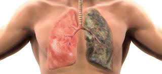 Obat Batuk Berdarah Di Apotik Kimia Farma