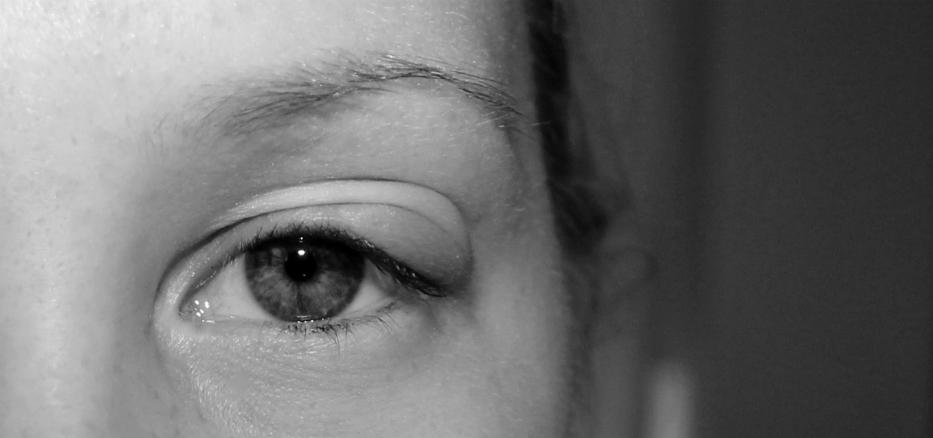 silmäluomi turvoksissa ja kipeä