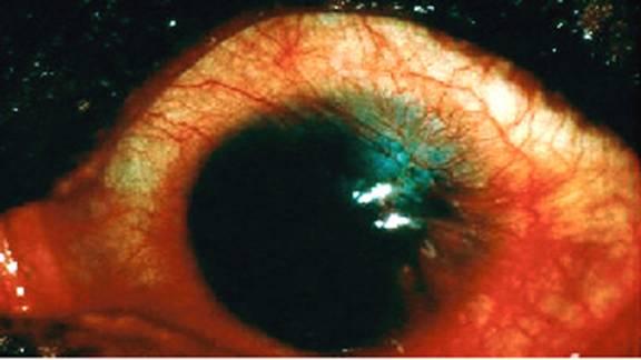 Atopic KeratoConjunctivitis (diagnosis treatment) photos clip_image008.jpg