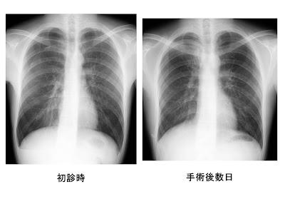 I'm a Radiographer!! Radiotechnologist!! 私は放射線技師!!ブログです ...