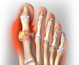 Bahaya Asam Urat Gejalanya, Artikel Penyebab Penyakit Asam Urat Dan Kolesterol, Gejala Awal Terkena Asam Urat