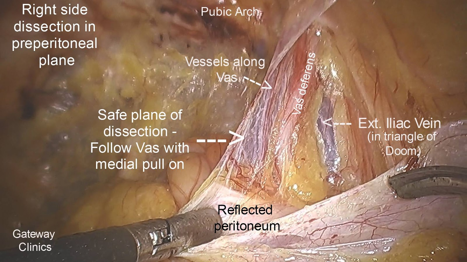 Laparoscopic Inguinal Hernia Repair- Surgical Anatomy | World ...