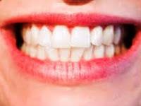 Gambaran Umum Gigi Manusia