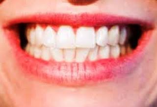 Gigi dan Mulut