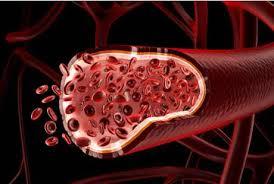 Cara Mengatasi Lemak dan Gula Darah Tinggi