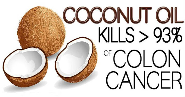Even The Doctors Are Shocked: Coconut Oil Kills 93% Of Colon Cancer Cells In a Very Short Time