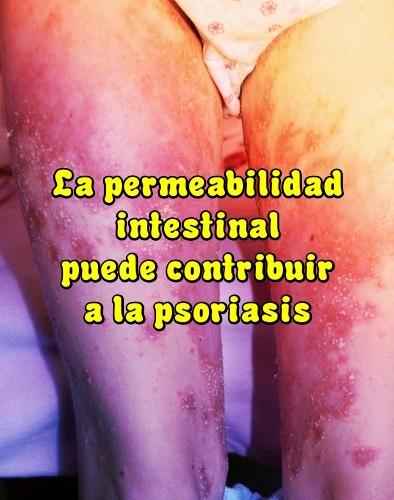 Remedios para la psoriasis en las piernas
