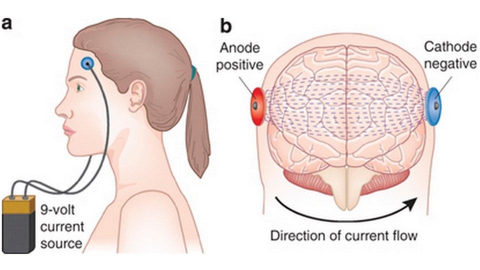 図:tDCS 経頭蓋直流電気刺激