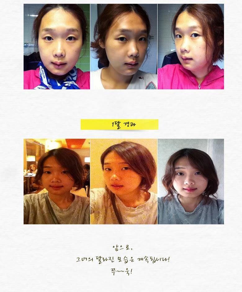 ID Hospital Korea: November 2013