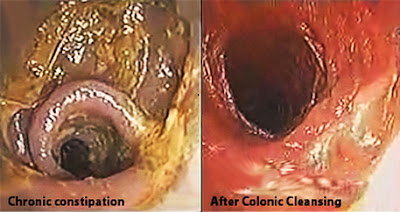11 Natural Home Remedies For Colon Cleansing