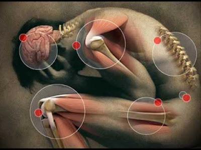 fibromialgia-sintomas-causas-tratamentos
