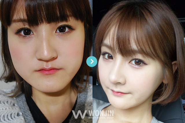 Korean Two jaw surgery reivew