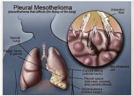 Mesothelioma Causes - A Field Requiring Huge Investment Of Time And Money