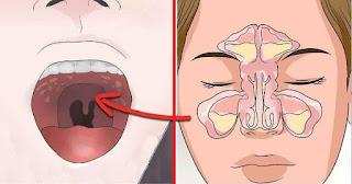 Aliviar la congestión nasal