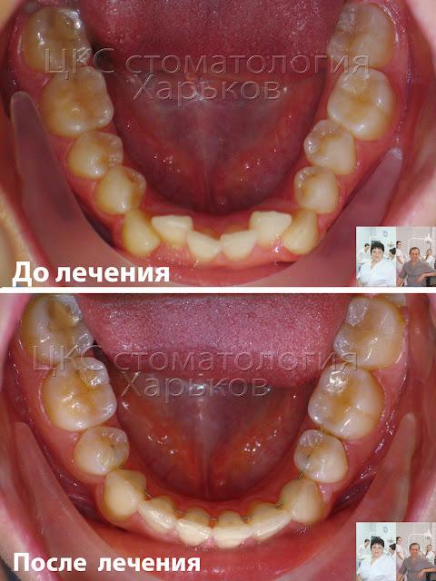 Форма зубного ряда до и после эластиков