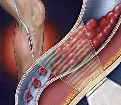 Θρομβοφλεβίτιδα ή «βαθιά» φλεβική θρόμβωση. Ποιες οι αιτίες και πώς ... 1a24560d651