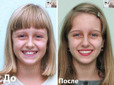 Два фото пациента до после лечения