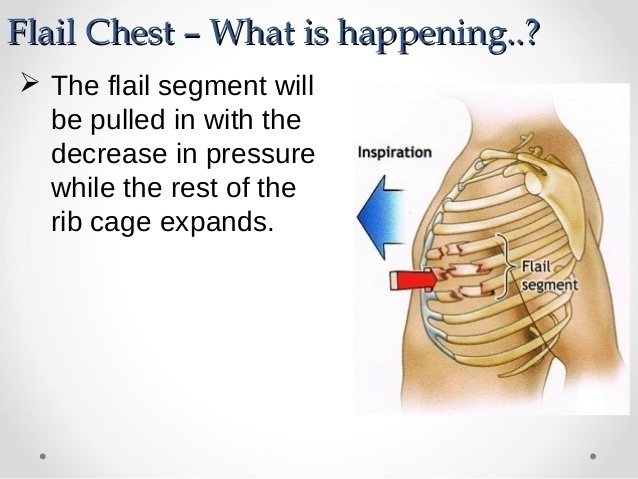 Flail chest injuries are usually caused by chest trauma injuries like car accidents or hard falls. - He Drank 24 Cans Of Red Bull… Hours Later This Starts Happening INSIDE His Body.