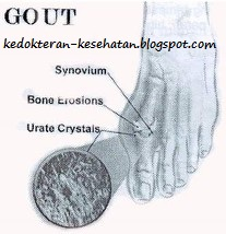 uric acid blood assay gout food to avoid list what causes gout in the foot uk