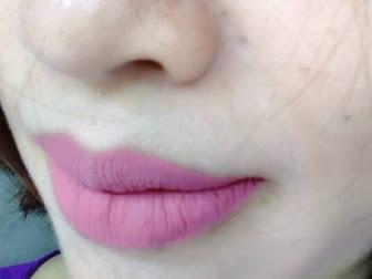 Perawatan Bibir Kering dan Pecah-Pecah Selama Hamil
