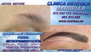 micropigmentación cejas Huelva Clínica Estética Maquillaje Permanente Facial, Micropigmentación Capilar y micropigmentación cejas en Marbella y Huelva: Te ofrecemos la mayor calidad de nuestroservicio con los mejores profesionales en micropigmentación capilar y micropigmentación cejas