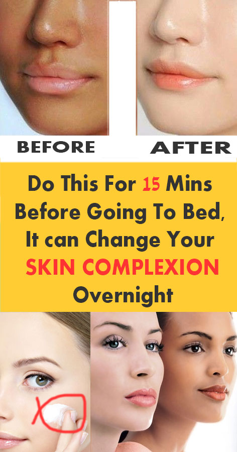 home remedy for skin complexion
