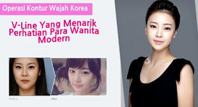 foto sebelum dan sesudah operasi kontur wajah korea