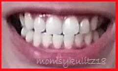 Simply momsykulitz professional teeth whitening by concepcion this is my brighter smile after the procedure solutioingenieria Choice Image
