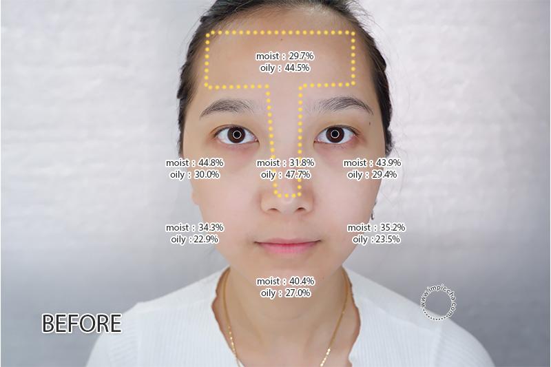 Before Skin Care