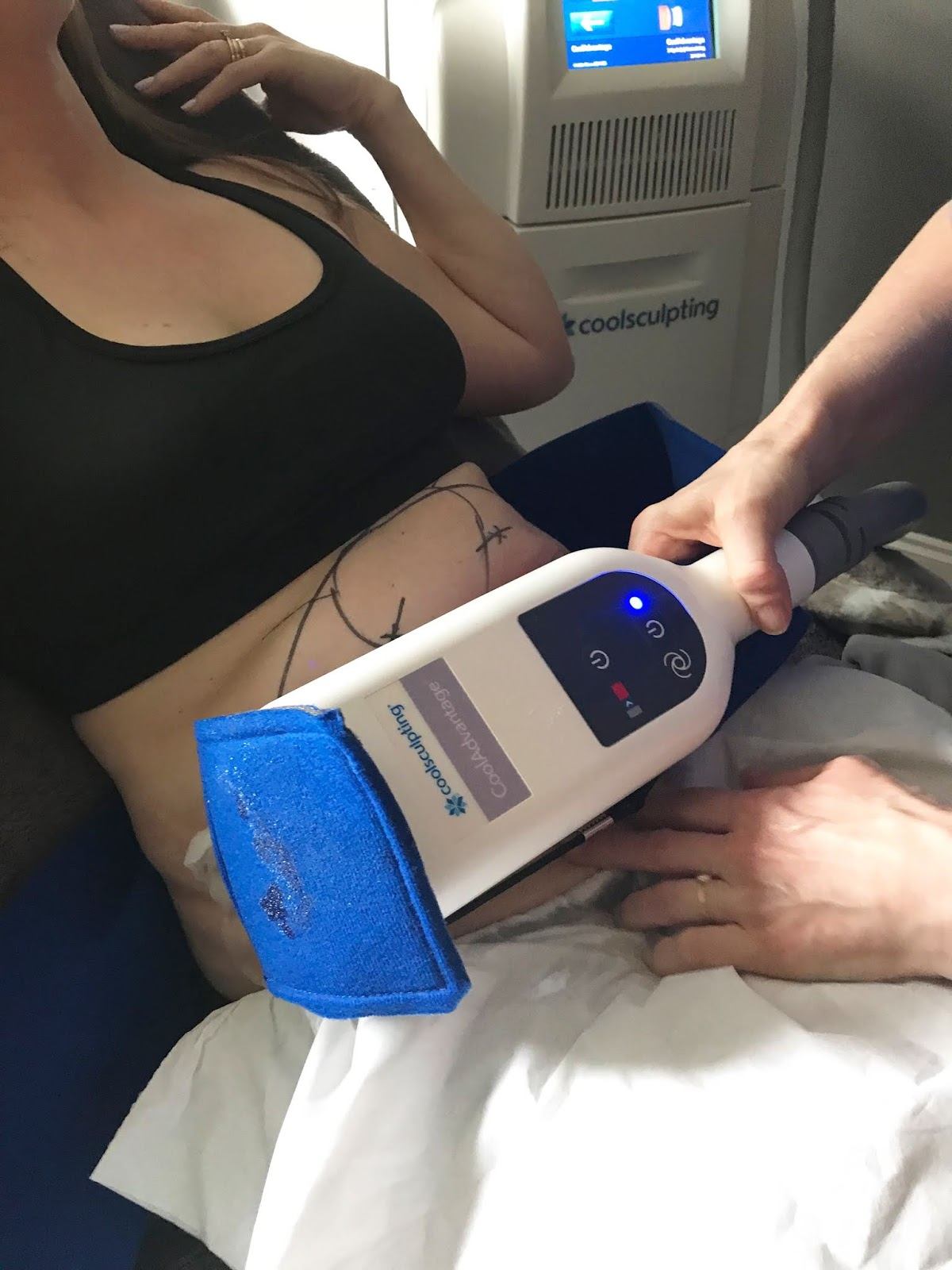 Coolsculpting \ Hampton Clinic \ Solihill \ West Midlands \ fat freezing \ cryolipolysis \ Priceless Life of Mine \ over 40 lifestyle blog