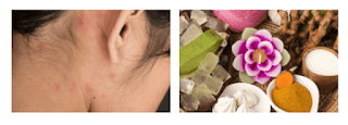 Acne Cyst On Neck: What is It? What Causes it?