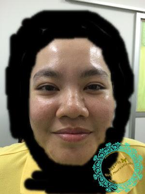 awet muda, anti ageing, DDS treatment, first in malaysia, gelugor, sungai pinang, karpal drive, lumpuh, strok, lancarkan darah, perjalanan darah