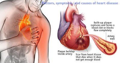 Factors, symptoms, and causes of heart disease