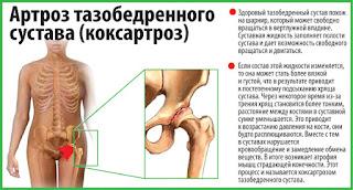 Какой тренажер лучше при коксартрозе? Аппарат для лечения коксартроза