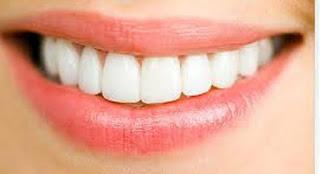 7 Cara Ampuh Memutihkan Gigi Kuning Yang Mudah Dilakukan Youdokter