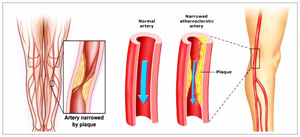Cara Mengobati Penyakit Arteri Perifer Secara Tradisional