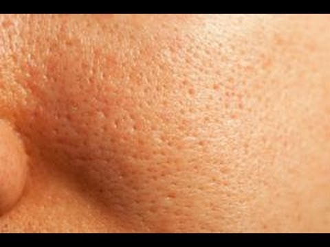 How To Unclog Pores On Face Naturally