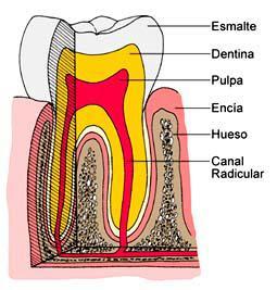 ¿Qué puedo sentir después de una endodoncia?